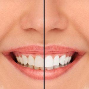 Smile Comparison