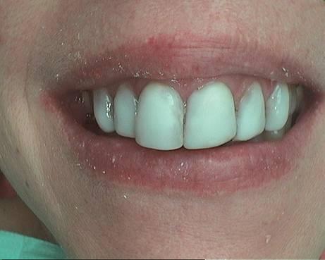 buck teeth reduction before
