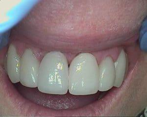 Fixed Teeth of Tulsa Client